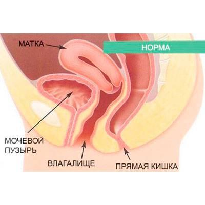 operatsiya-vipadenie-stenok-vlagalisha